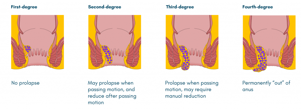 different grades of Haemorrhoids surgery