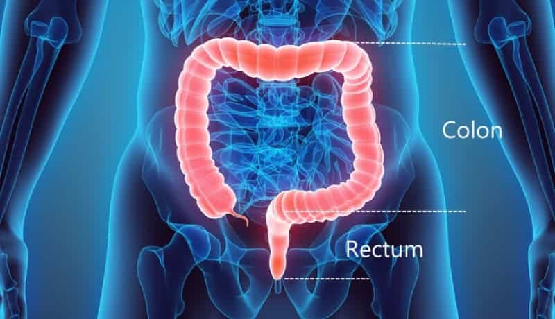 Colon Rectum Colorectal Cancer